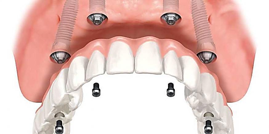 Витебск имплантация зубов отзывы