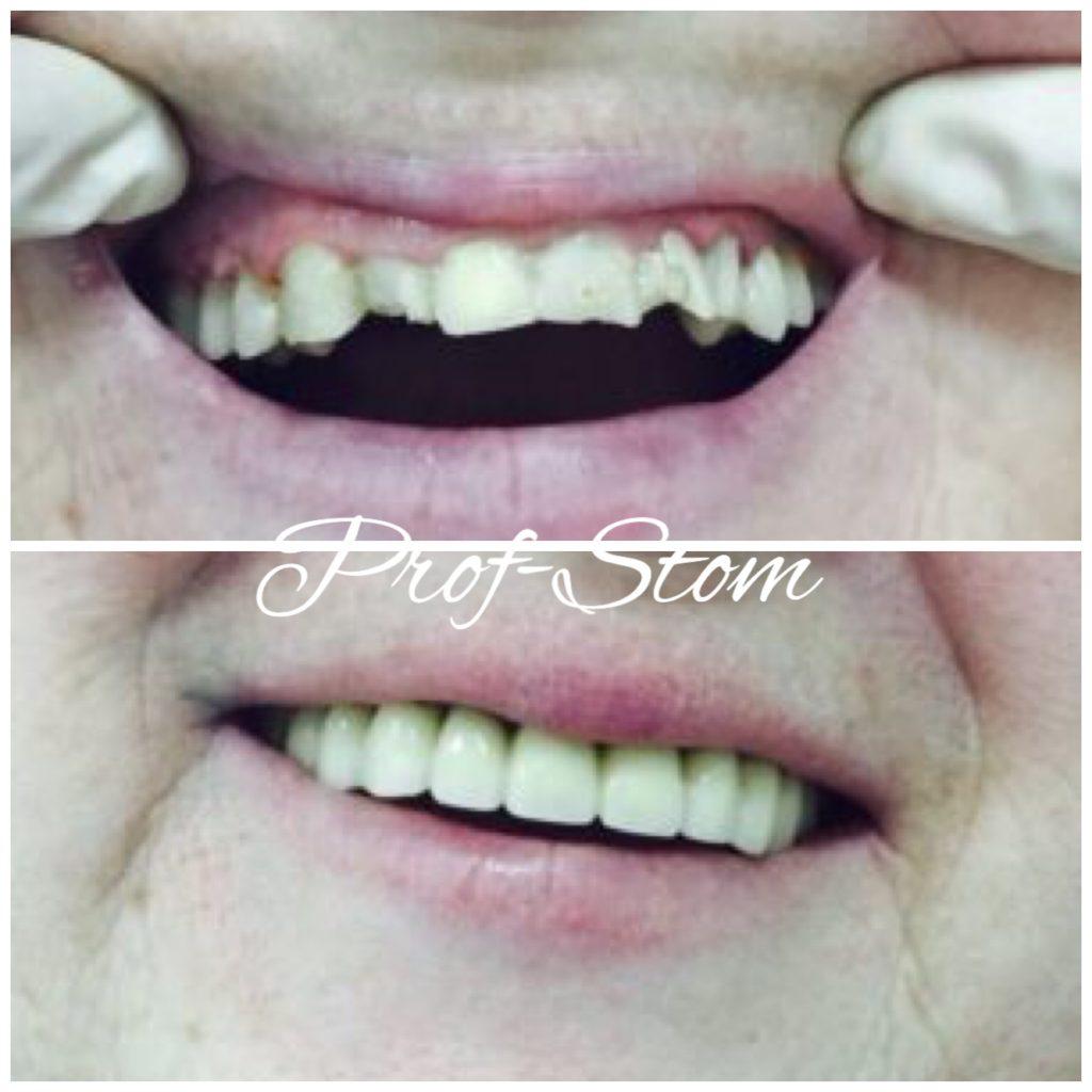 Фото как делают металлокерамику зубы в