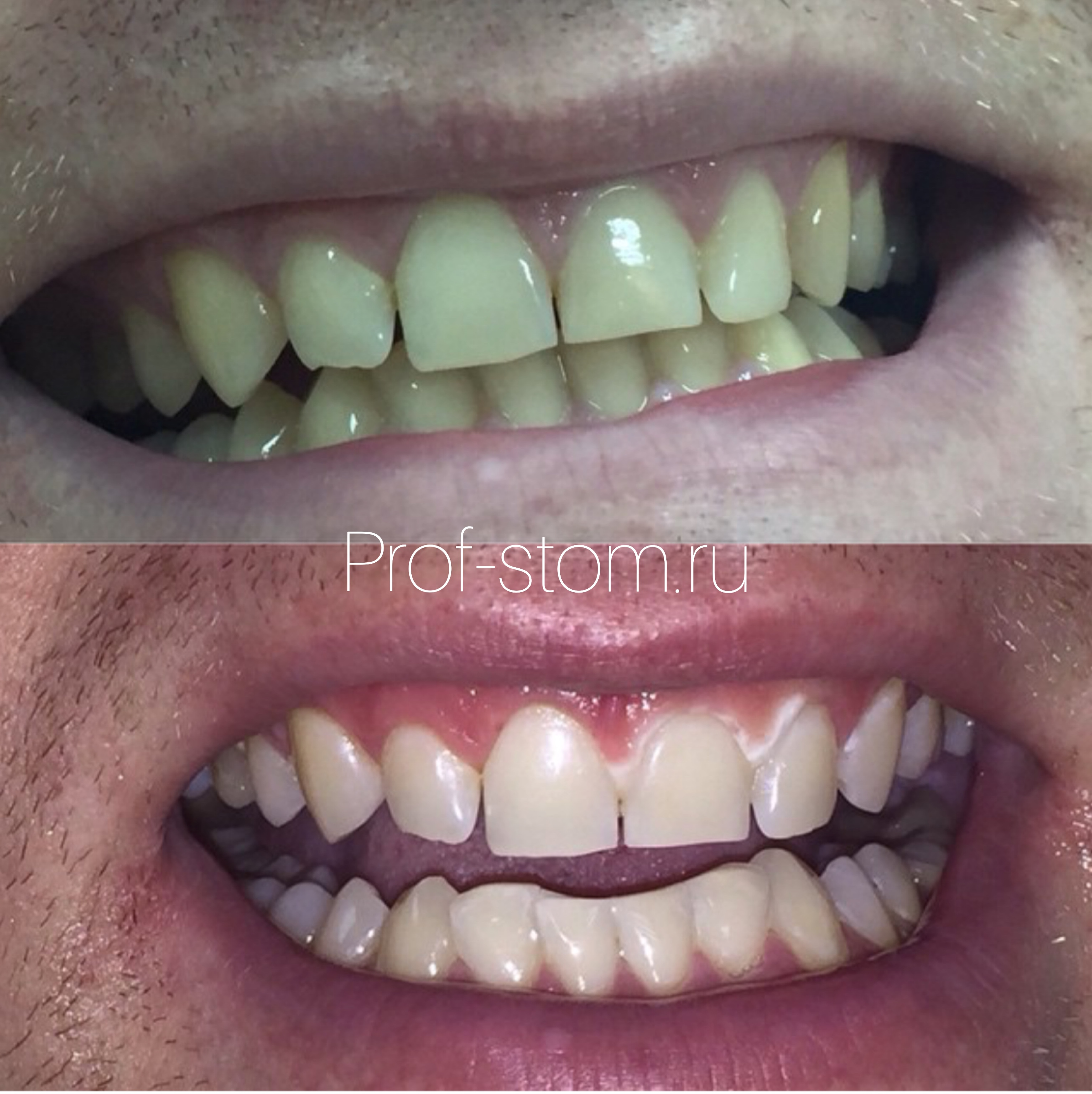 Otbelivanie zubov zoom4