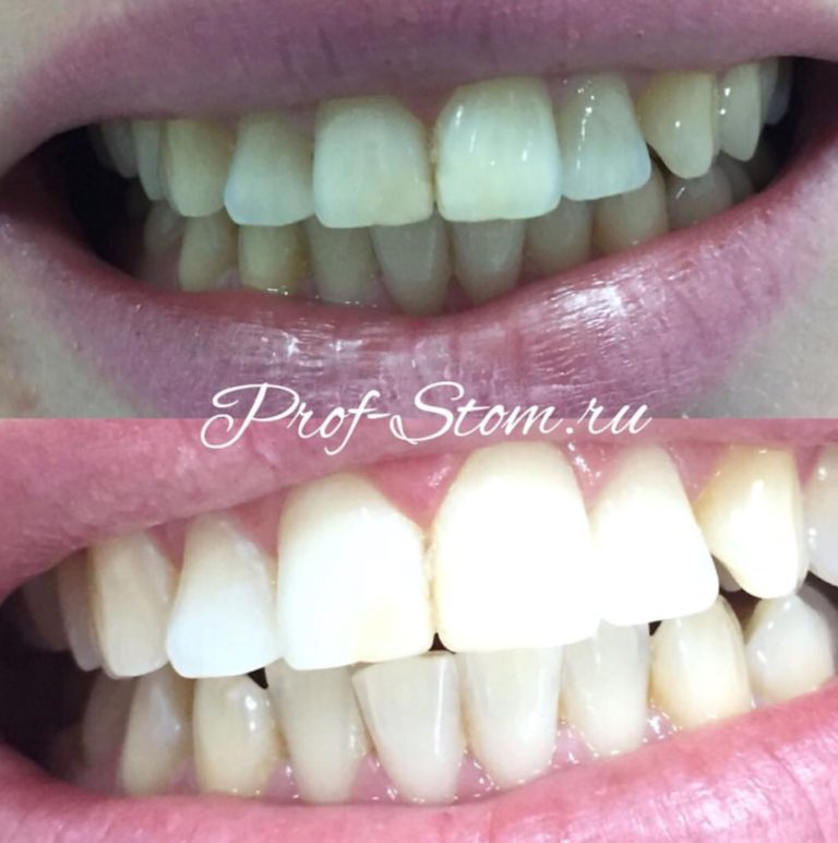 Otbelivanie zubov Zoom