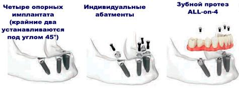 All on 4 имплантация технология