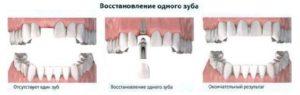 экспресс имплантация1