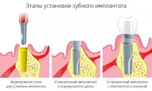 эндоскопическая имплантация