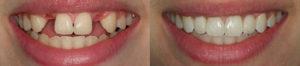 implantaciya-zubov.jpg 1