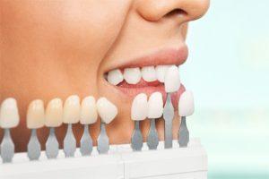 protezirovanie_zubov_v_moskve