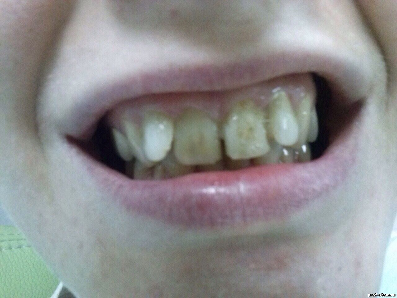 протез зубов винирами