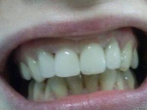 Эстетическая реставрация зубов до и после