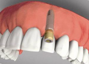 implant-zub