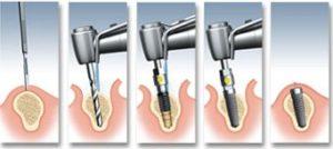 implantacia_1
