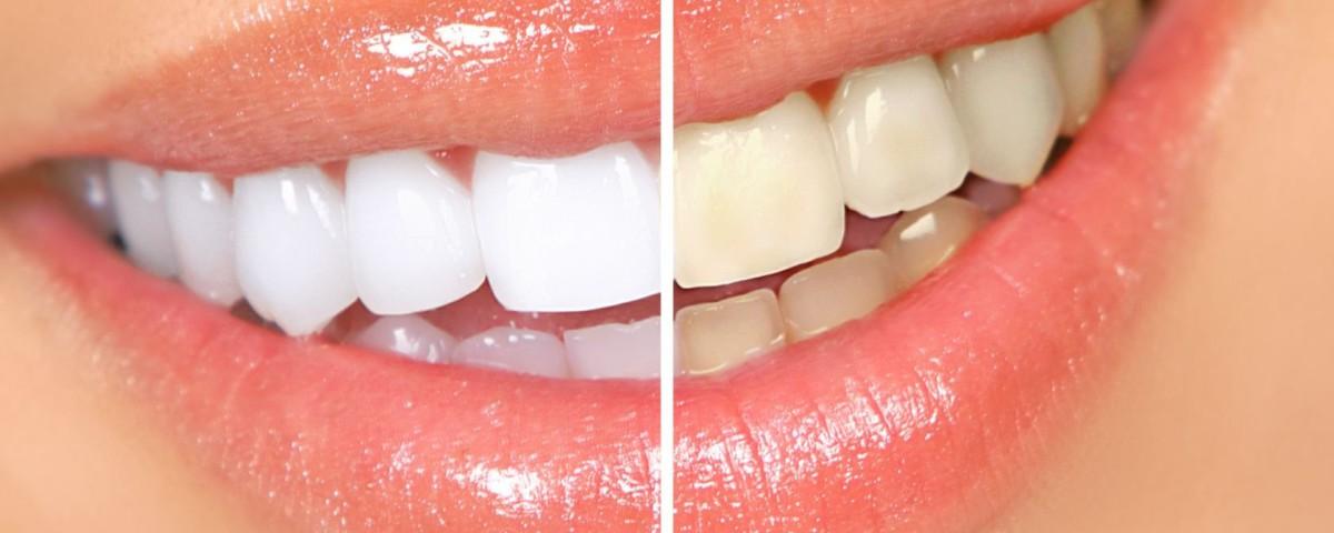 виниры на зубы без обтачивания
