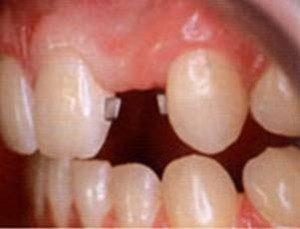Protezirovanie-bez-obtochki-zubov-300x229