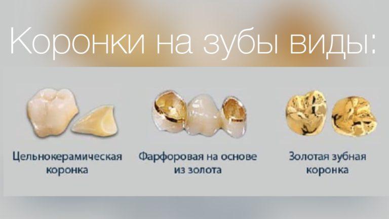 Золотые коронки для зубов в спб