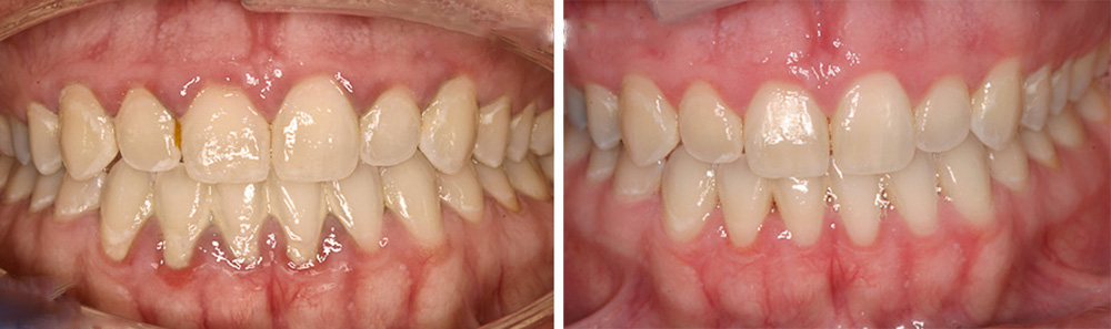 лечение десен фото до и после