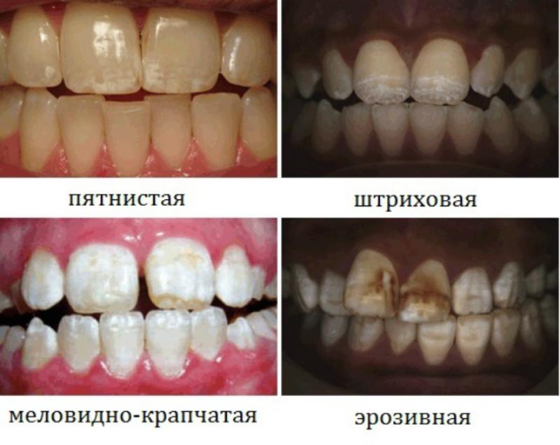 пятна на зубах лечение