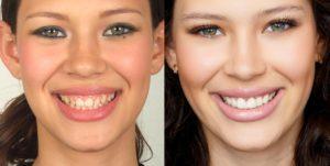 como-facetas-laminadas-de-porcelana-podem-reconstruir-o-sorriso