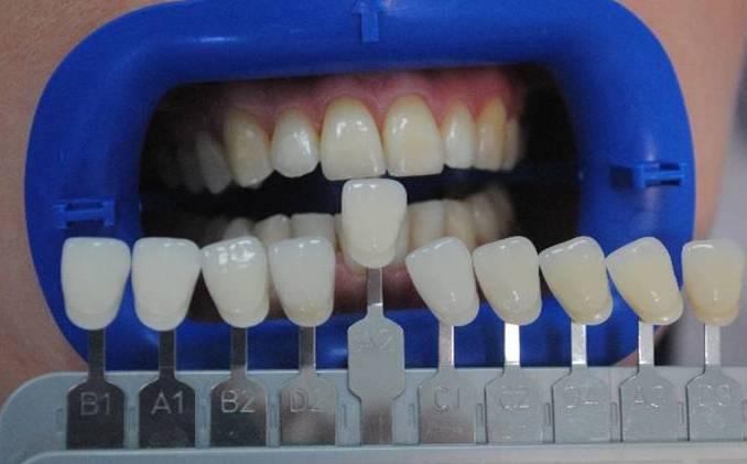 Цвет зубов таблица фото самые белые