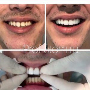 Поставить виниры на зубы