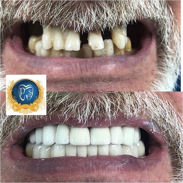 Имлантация зубов All on 4
