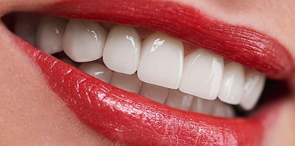 Имплантация зубов без разреза