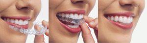 Брекетына зубы цена