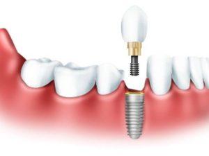 одномоментная Имплантация зуба Москва
