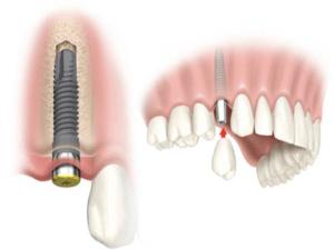 Имплантация зуба Москва