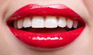 керамические виниры цена на 1 зуб